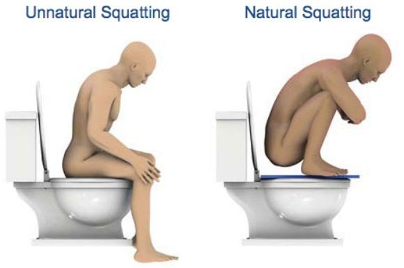 Cambiar la forma de sentarnos al momento de defecar