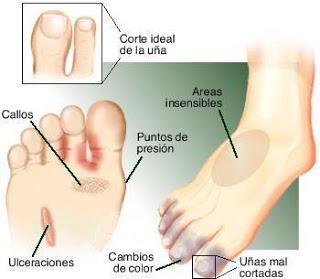 Remedios pies hongos caseros en