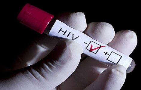 información-relevante-sobre-el-VIH-SIDA